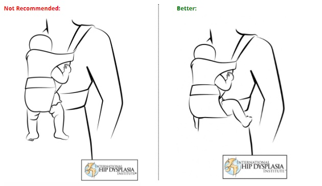 Correct positioning and safety Over the last few years, a lot of research has taken place to determine the correct positioning for a baby being carried in a sling, wrap or carrier. The most important considerations are the position of the legs, the spine and the head, especially if your baby is a newborn. The carrier must allow babies to assume a 'frog leg' sitting position, and the spine to have a natural curve. These are paramount to avoid hip dysplasia.