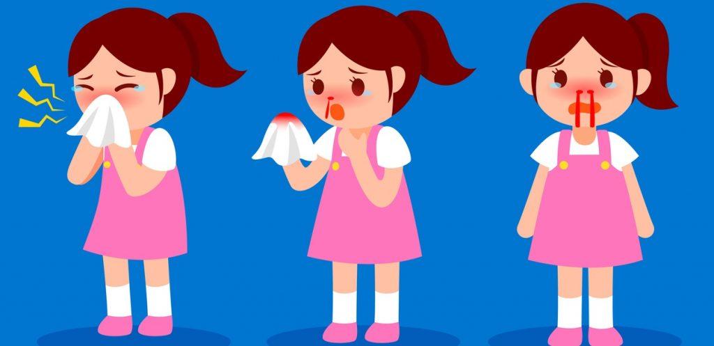 الرعاف أو نزيف الأنف عند الأطفال، أسبابه وطرق منزلية لعلاجه