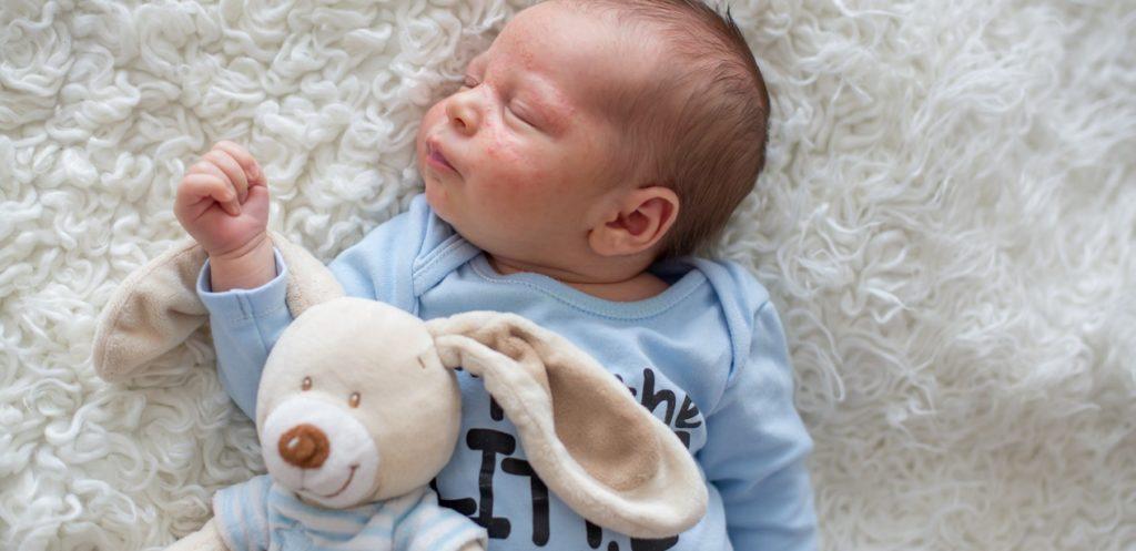 أسباب حدوث الأكزيما عند الرضع